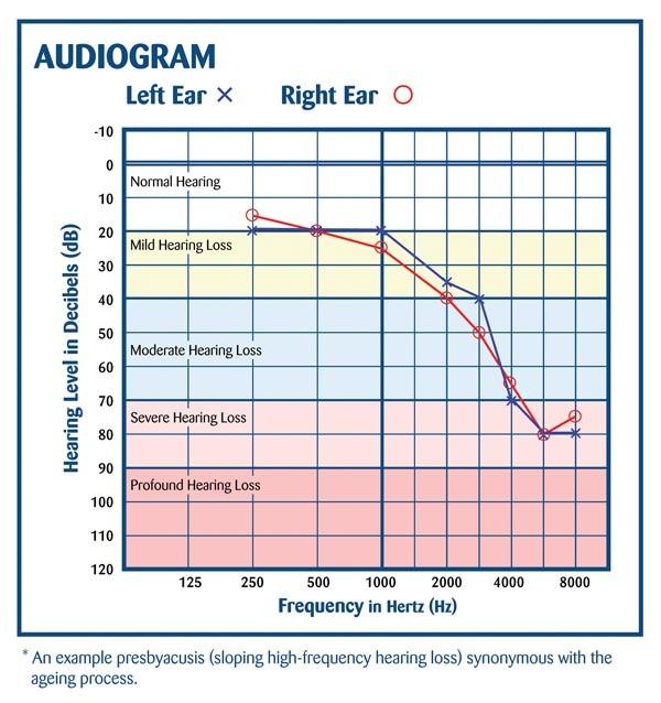 audiogram-chart